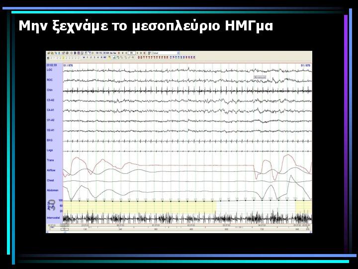 https://www.mermigkis.gr/wp-content/uploads/2016/12/584547a70efce.jpg